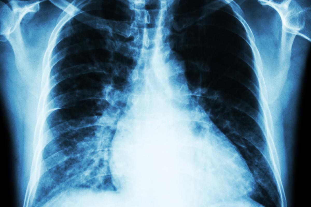 Kardioimedical-Niewydolnosc-serca-4.jpg