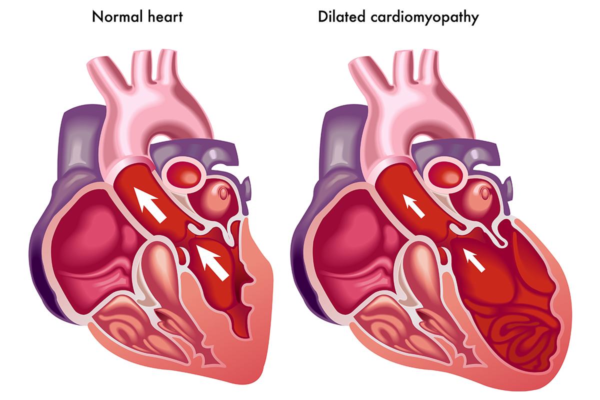 Kardiomiopatie-i-zapalenie-miesnia-sercowego-2-kardiomedical.jpg